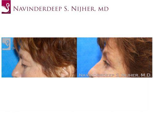 Eyelid Surgery Case #43196 (Image 3)