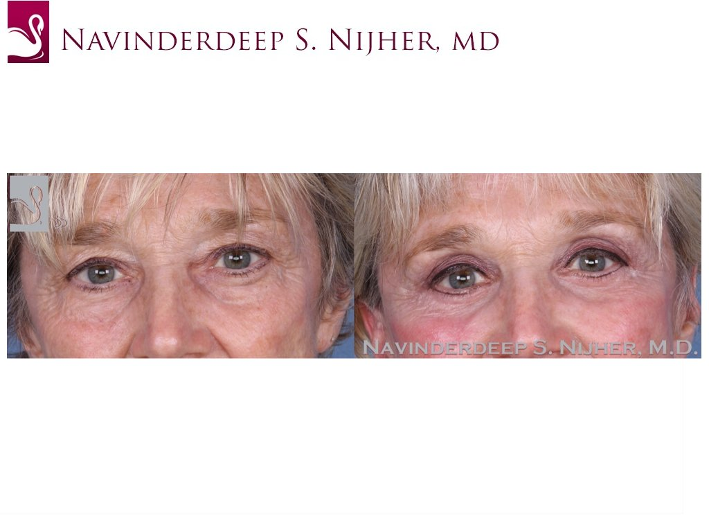 Eyelid Surgery Case #53886 (Image 1)