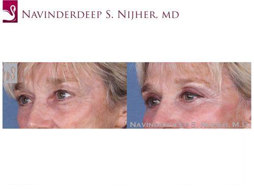 Eyelid Surgery Case #53886 (Image 2)