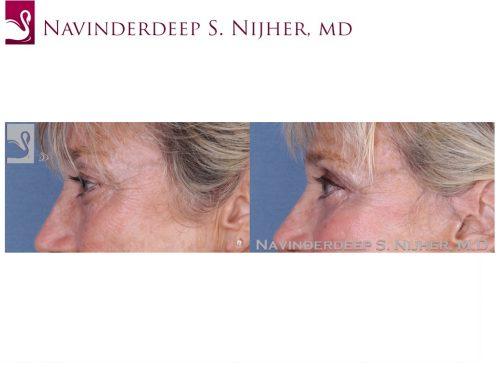 Eyelid Surgery Case #53886 (Image 3)