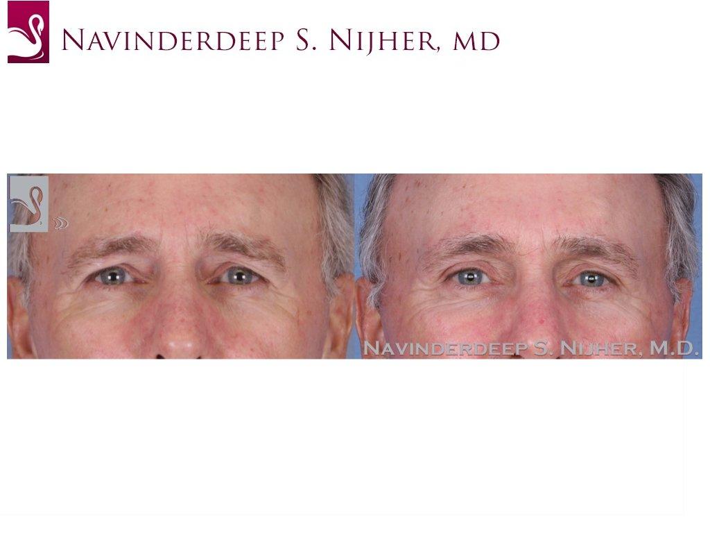 Eyelid Surgery Case #51540 (Image 1)