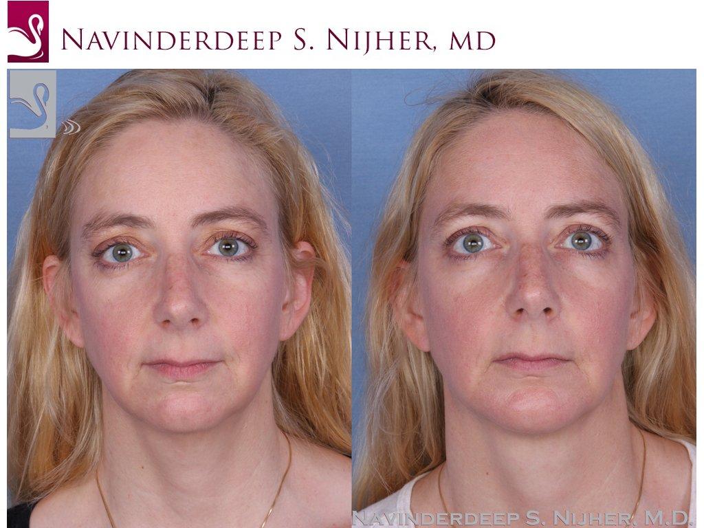 Facial Implants Case #54883 (Image 1)