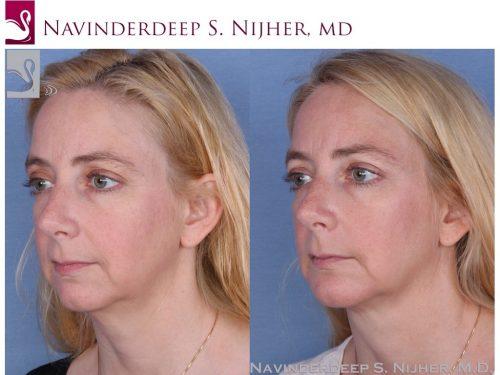 Facial Implants Case #54883 (Image 2)