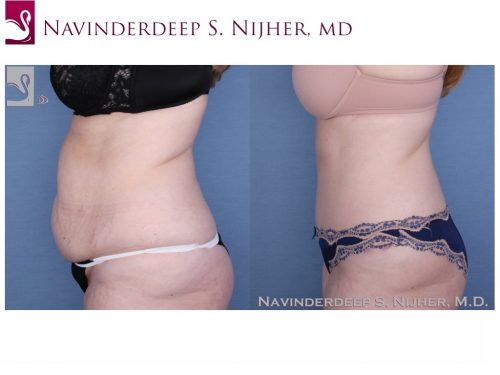 Abdominoplasty (Tummy Tuck) Case #45864 (Image 3)