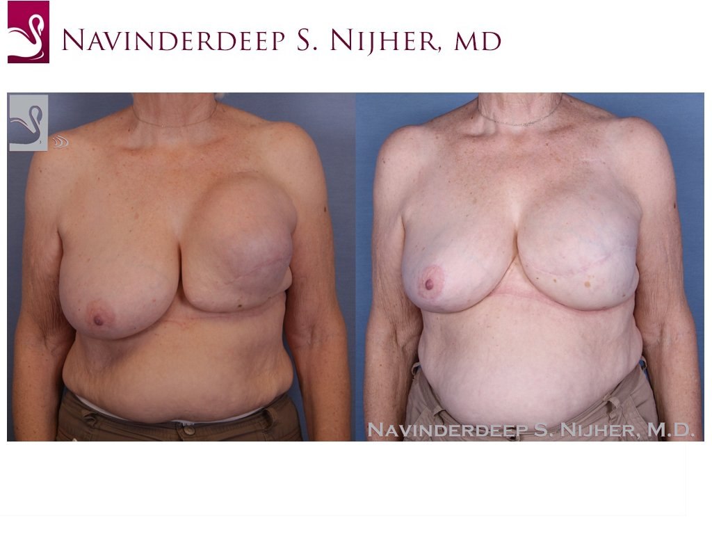 Breast Reconstruction Case #47453 (Image 1)