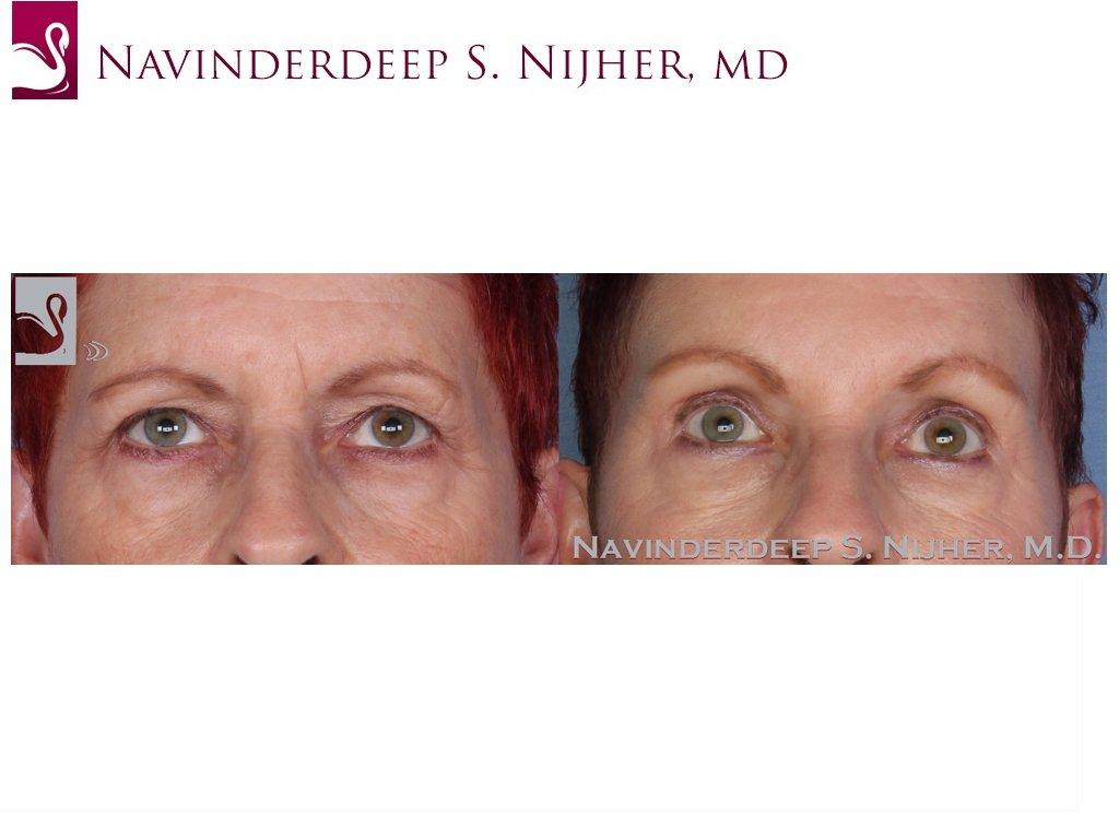 Eyelid Surgery Case #22539 (Image 1)