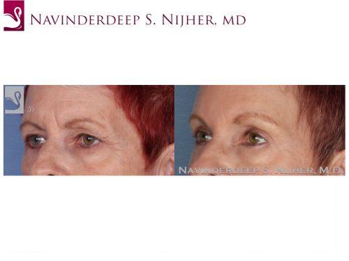 Eyelid Surgery Case #22539 (Image 2)