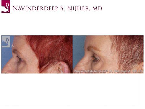 Eyelid Surgery Case #22539 (Image 3)