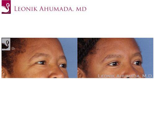 Eyelid Surgery Case #5146 (Image 2)