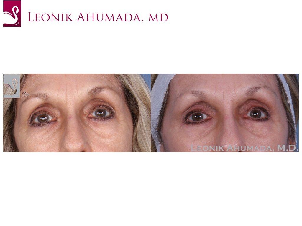 Eyelid Surgery Case #49754 (Image 1)