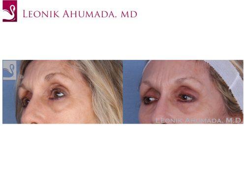 Eyelid Surgery Case #49754 (Image 2)