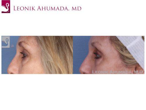 Eyelid Surgery Case #49754 (Image 3)