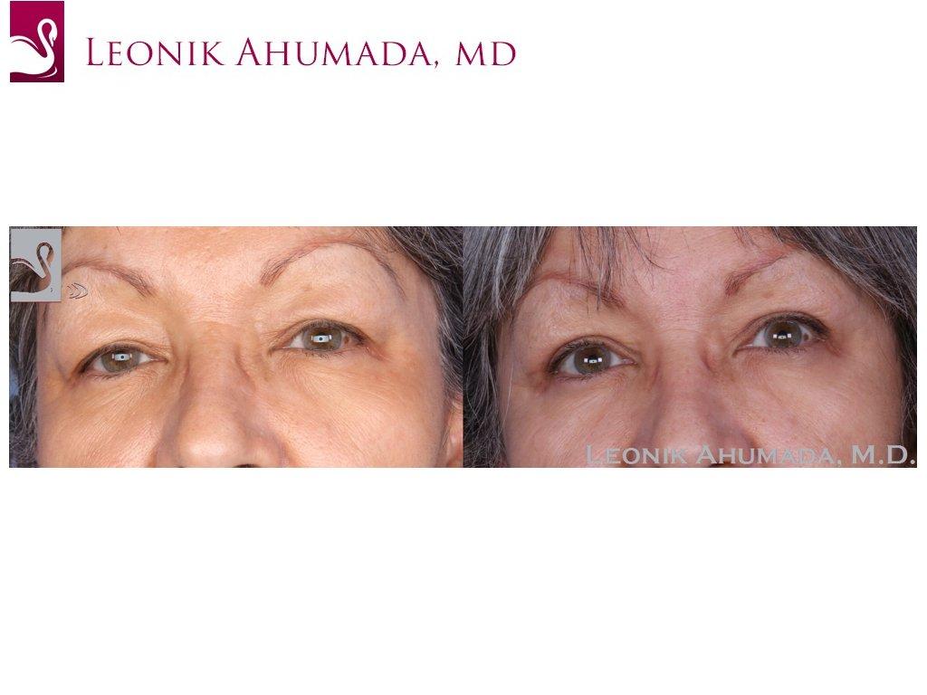 Eyelid Surgery Case #55079 (Image 1)