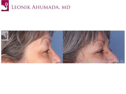 Eyelid Surgery Case #55079 (Image 3)