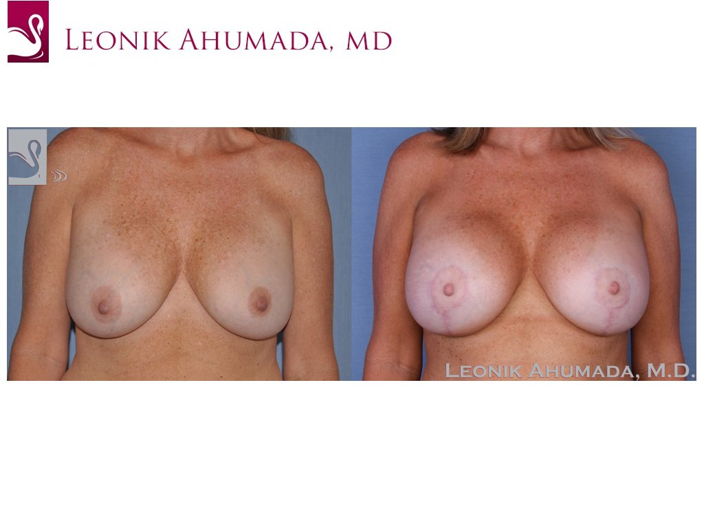 Breast Revisions Case #16792 (Image 1)