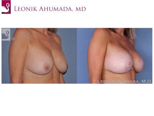 Breast Revisions Case #16792 (Image 2)
