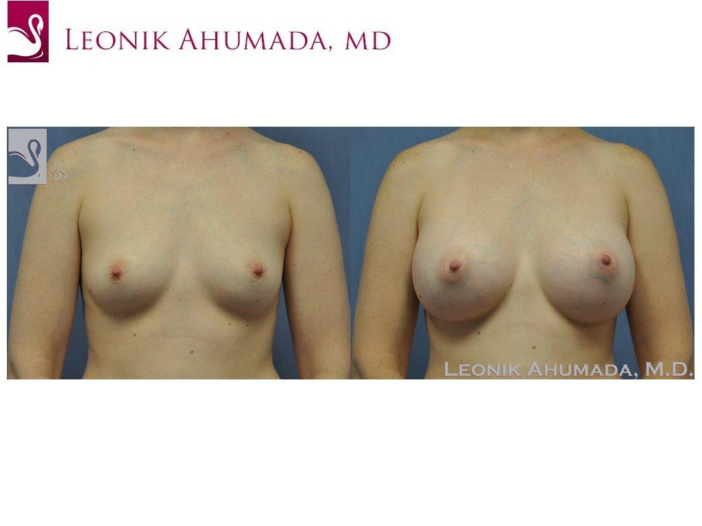 Breast Augmentation Case #19739 (Image 1)