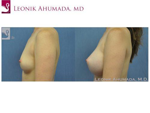 Breast Augmentation Case #19739 (Image 3)
