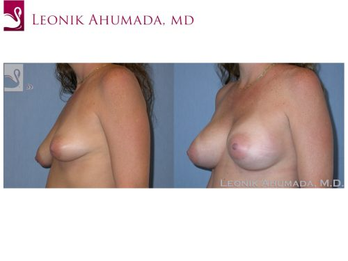 Breast Augmentation Case #37627 (Image 2)