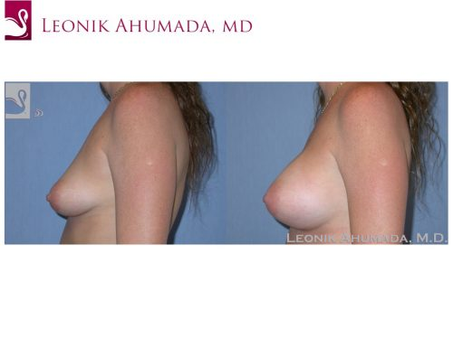 Breast Augmentation Case #37627 (Image 3)