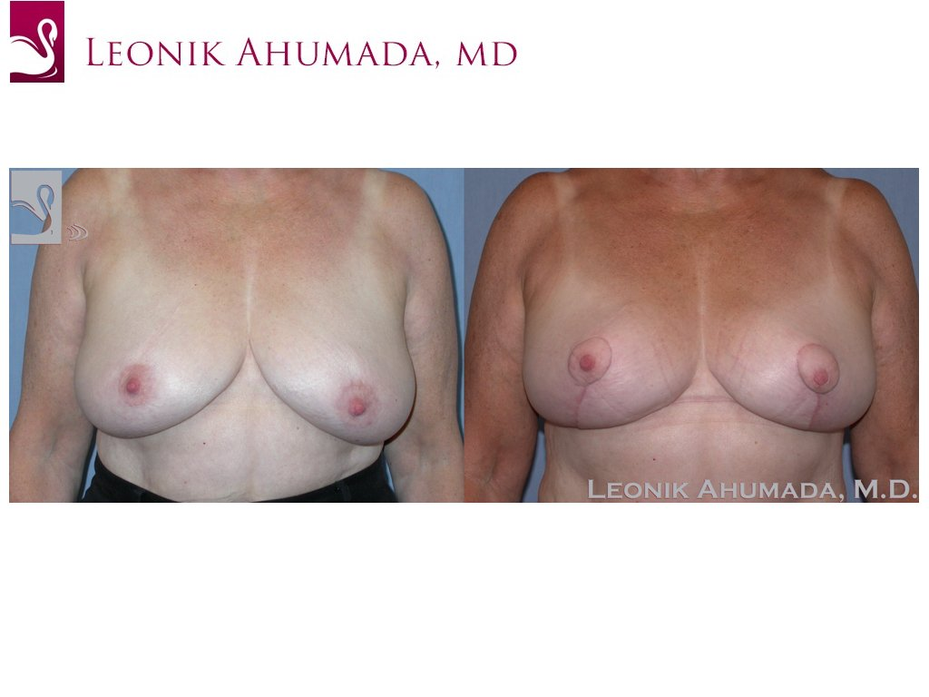 Female Breast Reduction Case #38113 (Image 1)