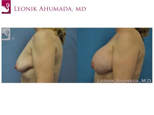 Breast Augmentation Case #40048 (Image 3)