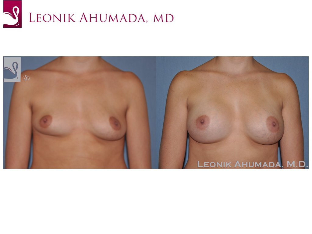 Breast Augmentation Case #47561 (Image 1)