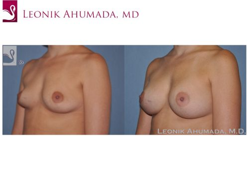 Breast Augmentation Case #47561 (Image 2)
