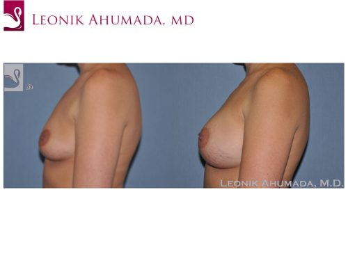 Breast Augmentation Case #47561 (Image 3)