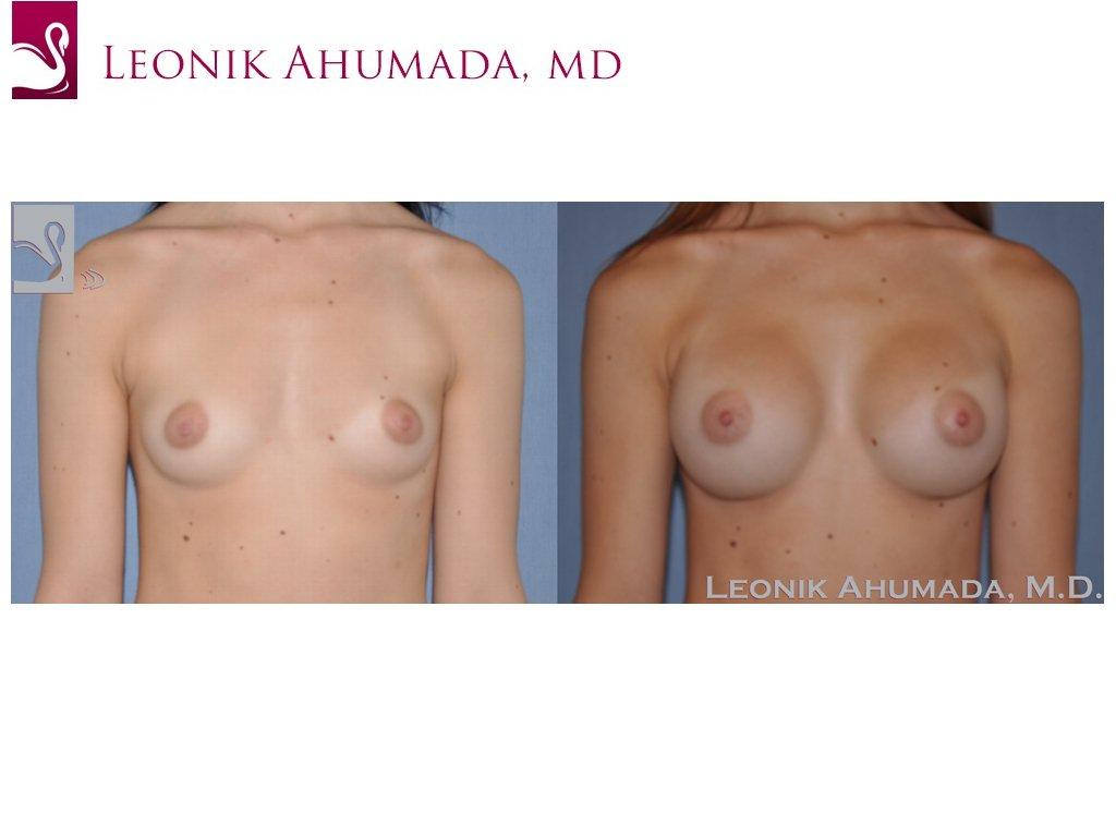 Breast Augmentation Case #49775 (Image 1)
