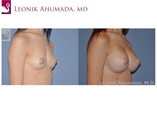 Breast Augmentation Case #49775 (Image 2)