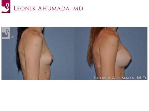 Breast Augmentation Case #49775 (Image 3)
