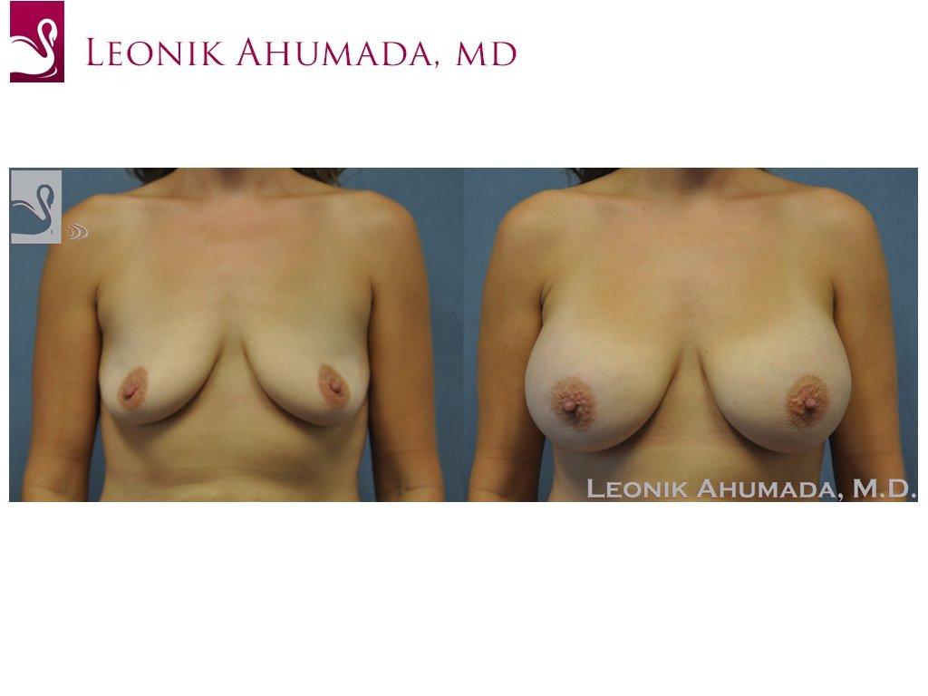 Breast Augmentation Case #50914 (Image 1)