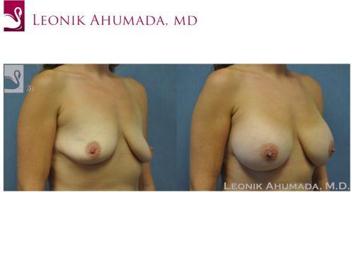 Breast Augmentation Case #50914 (Image 2)