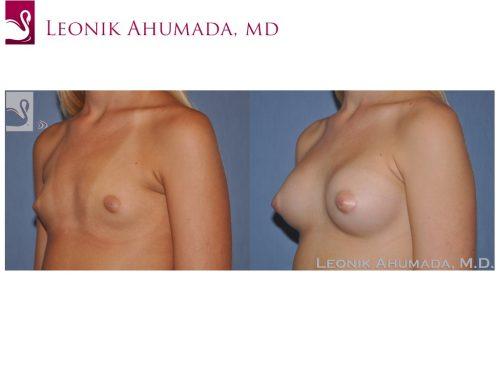 Breast Augmentation Case #51185 (Image 2)