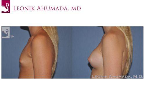 Breast Augmentation Case #51185 (Image 3)