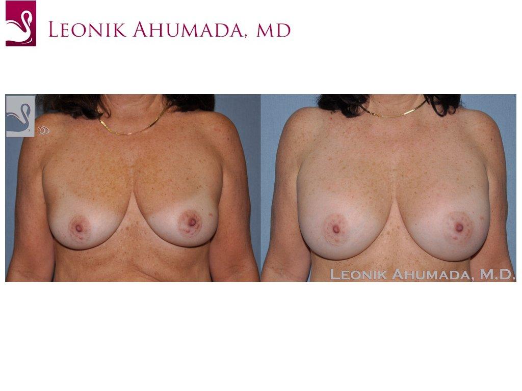 Breast Augmentation Case #51337 (Image 1)