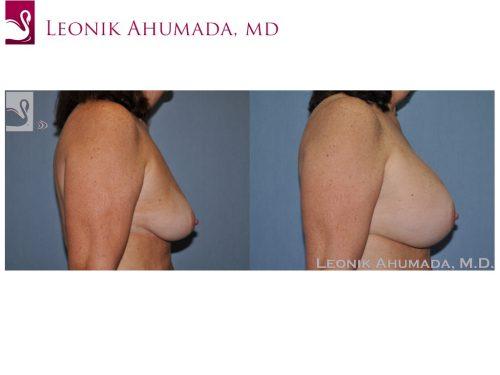 Breast Augmentation Case #51337 (Image 3)