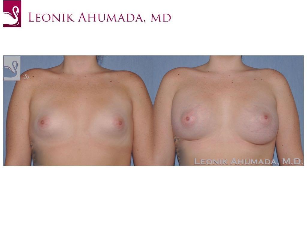 Breast Augmentation Case #51783 (Image 1)