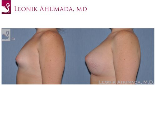 Breast Augmentation Case #51783 (Image 3)