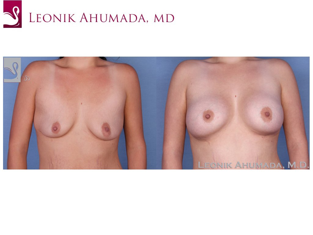 Breast Augmentation Case #52330 (Image 1)