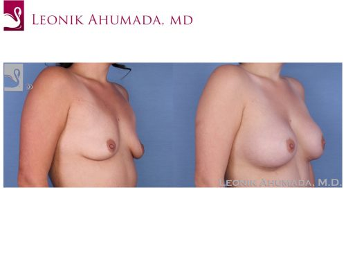 Breast Augmentation Case #52330 (Image 2)