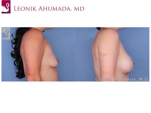 Breast Augmentation Case #52330 (Image 3)