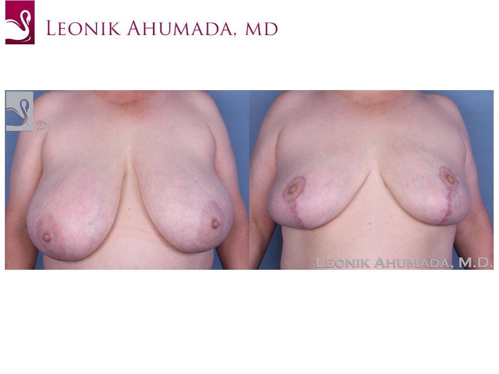 Female Breast Reduction Case #55396 (Image 1)