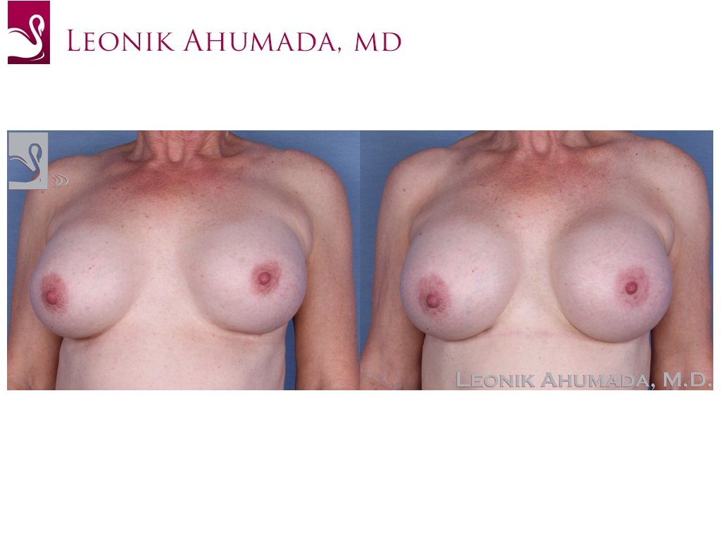 Breast Revisions Case #55422 (Image 1)