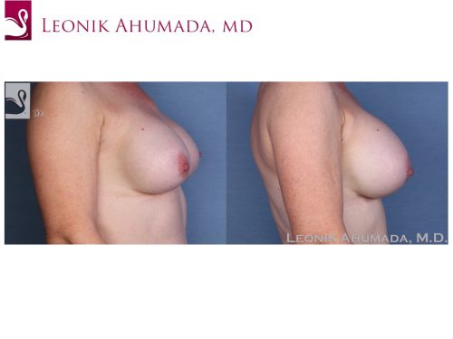 Breast Revisions Case #55422 (Image 3)