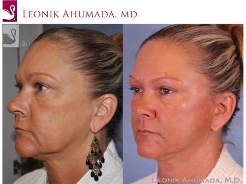 Face Lift Case #51412 (Image 2)