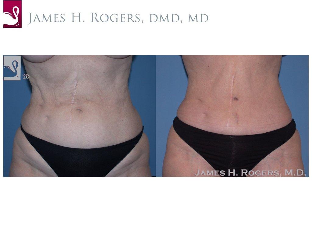 Abdominoplasty (Tummy Tuck) Case #22904 (Image 1)