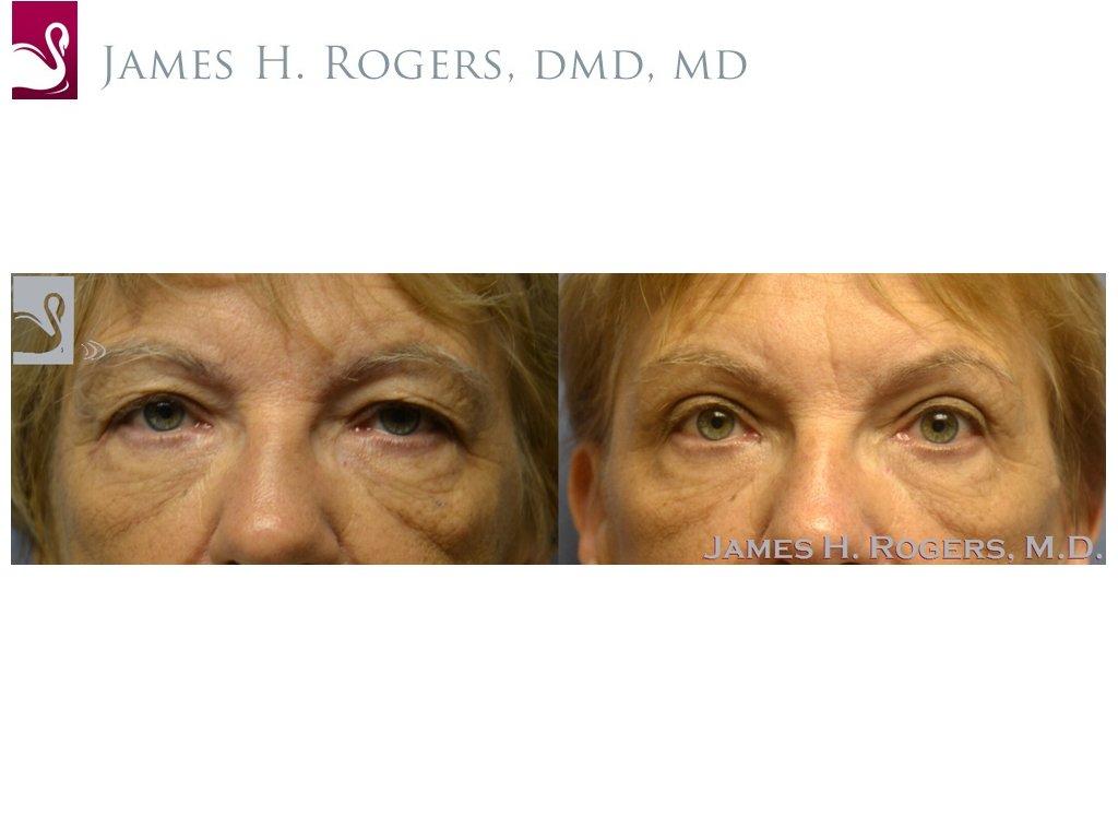 Eyelid Surgery Case #53613 (Image 1)