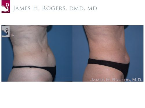 Abdominoplasty (Tummy Tuck) Case #22904 (Image 2)